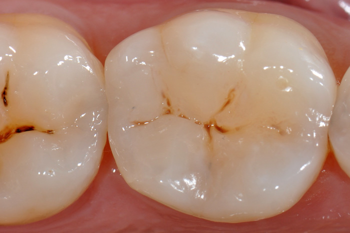 Composite dentaire Après