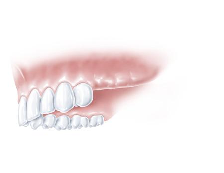 Remplacer plusieurs dents à Paris 8